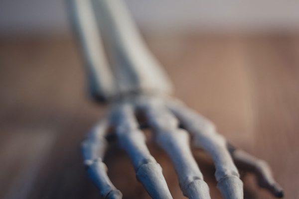 Kā uzveikt artrītu dabiskā veidā ar akupunktūras un turmerika palīdzību